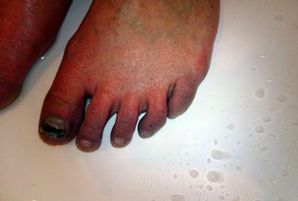 raynauds fenomen fötter